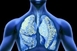 Amiăng thuộc nhóm một các chất gây ung thư cho người